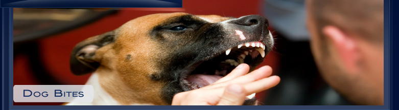 Los Angeles Dog Bite Attorneys